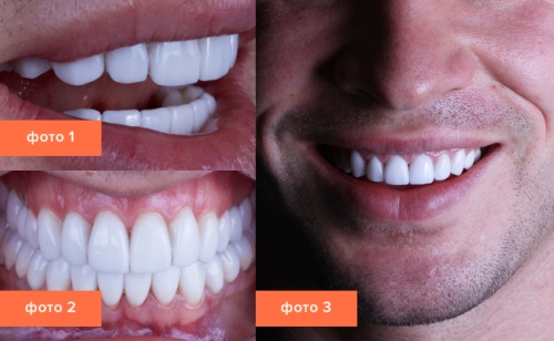 Perfect Smile Veneers обзор фото 28