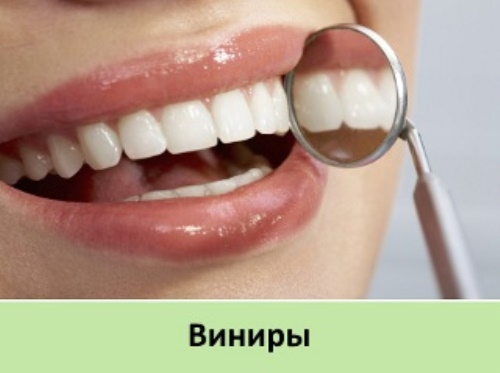 Perfect Smile Veneers в аптеке фото 61