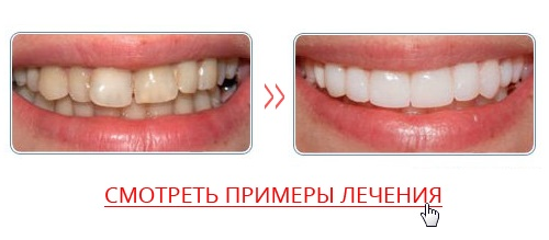 Perfect Smile Veneers в аптеках фото 73
