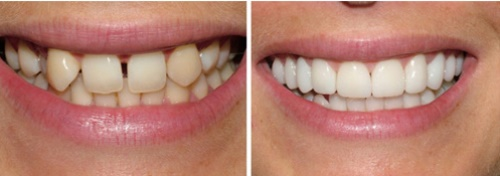 Perfect Smile Veneers плюс цена фото 22