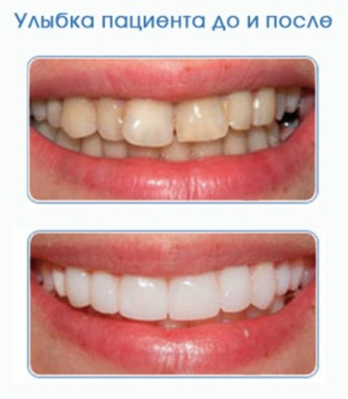 Perfect Smile Veneers инструкция цена фото 41